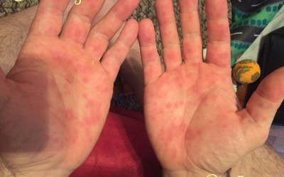 Adult Hand Foot Mouth Disease: This Ain't No Picnic